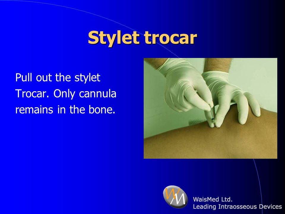 Stylet trocar Pull out the stylet Trocar. Only cannula
