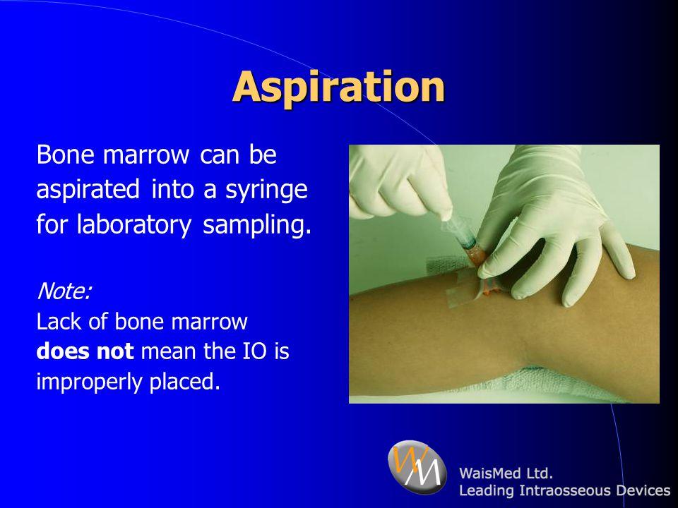 Aspiration Bone marrow can be aspirated into a syringe