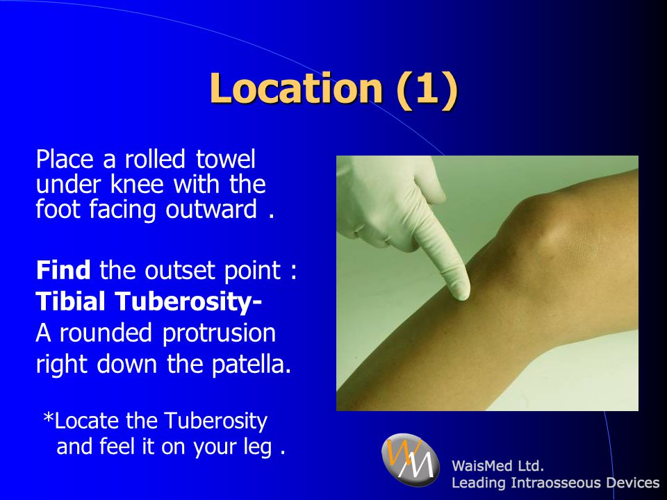 Location (1) Place a rolled towel under knee with the foot facing outward . Find the outset point :