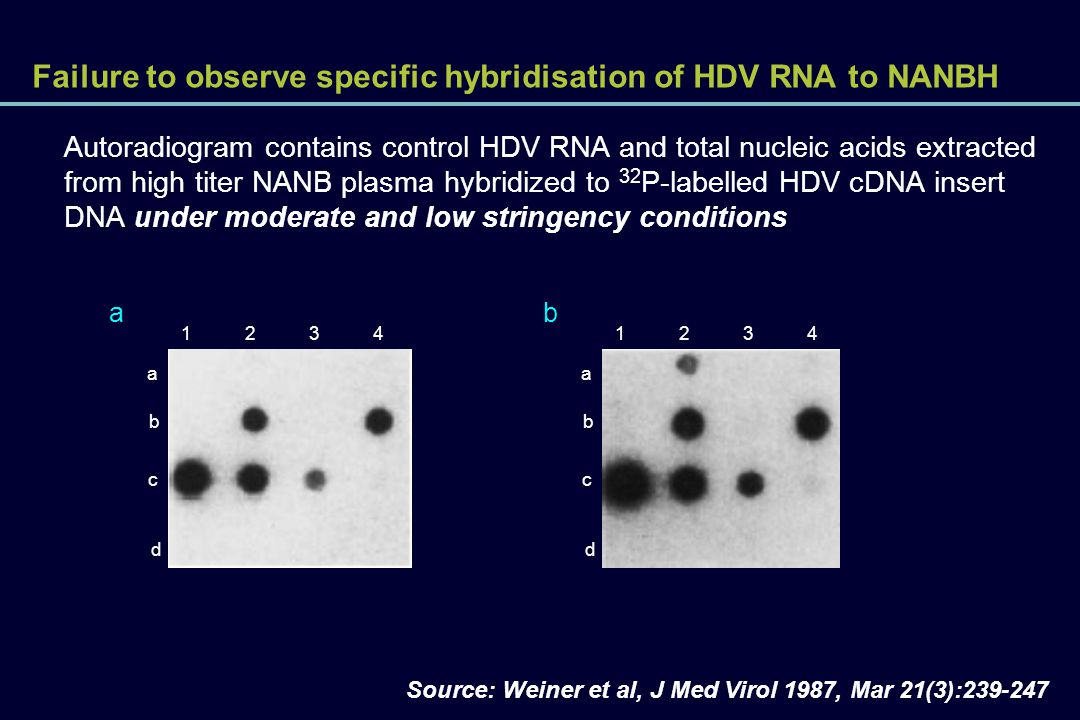 Failure to observe specific hybridisation of HDV RNA to NANBH