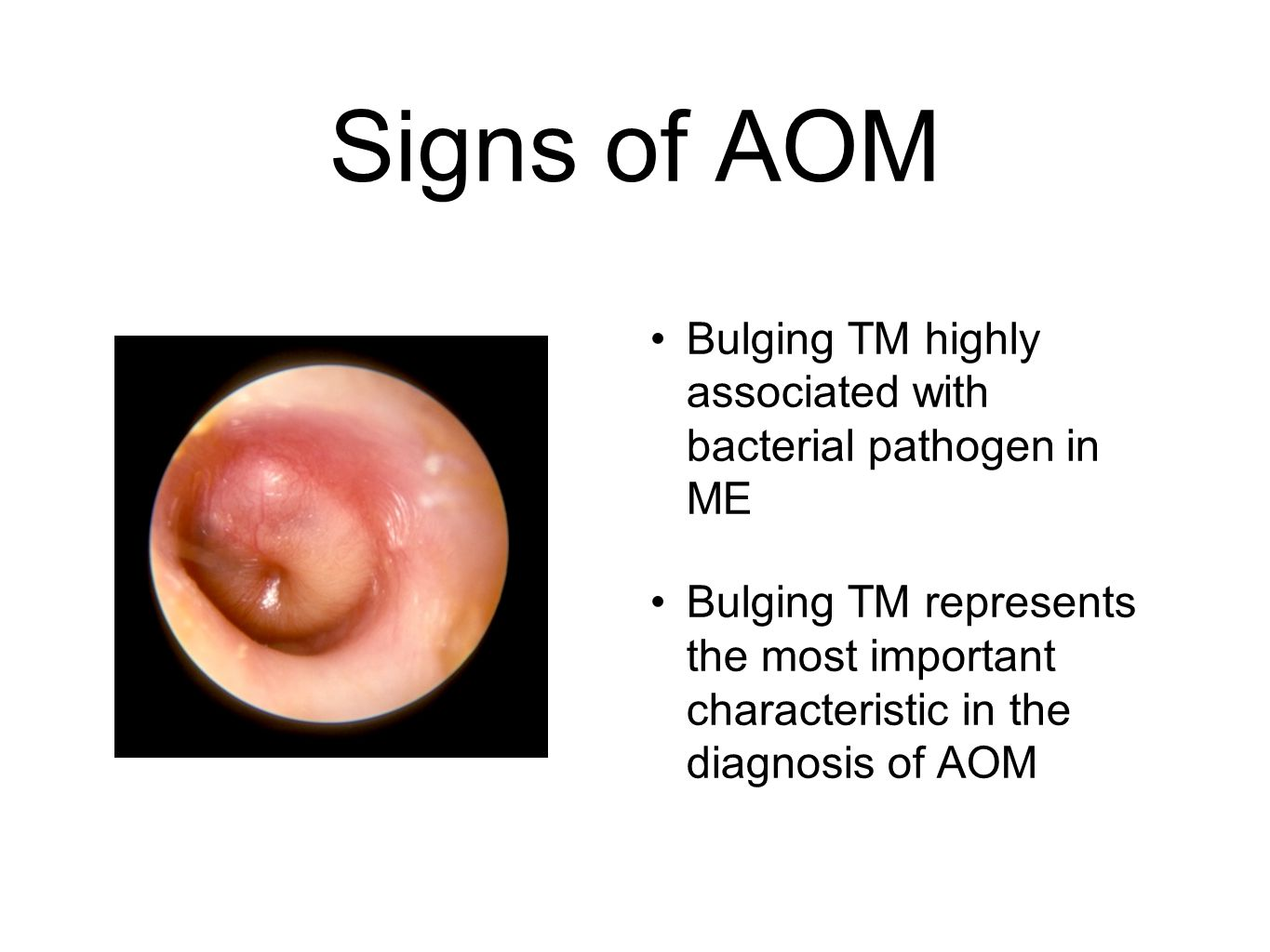 Signs of AOM Bulging TM highly associated with bacterial pathogen in ME.