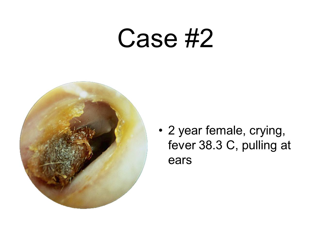 Case #2 2 year female, crying, fever 38.3 C, pulling at ears
