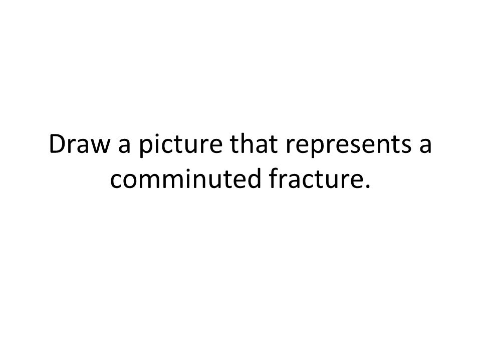 Draw a picture that represents a comminuted fracture.