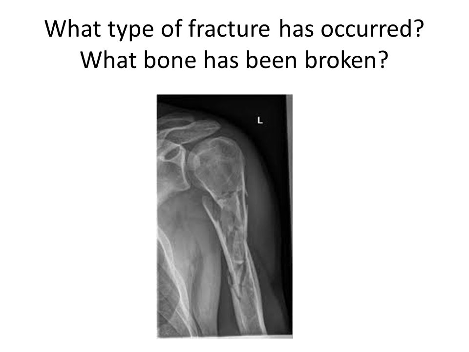 What type of fracture has occurred What bone has been broken