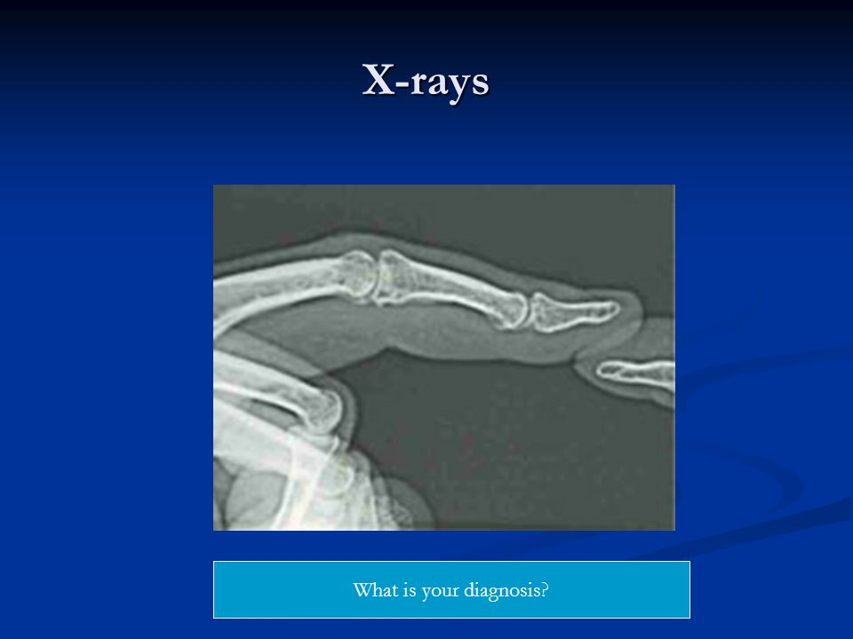 X-rays What is your diagnosis