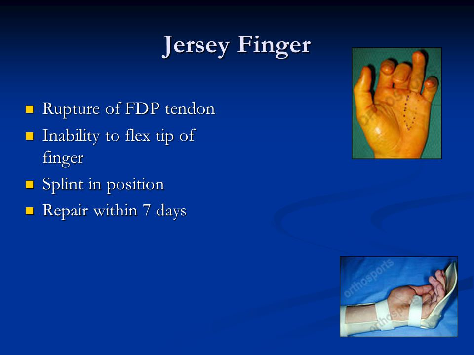 Jersey Finger Rupture of FDP tendon Inability to flex tip of finger
