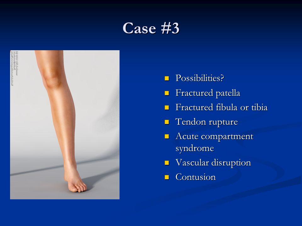 Case #3 Possibilities Fractured patella Fractured fibula or tibia