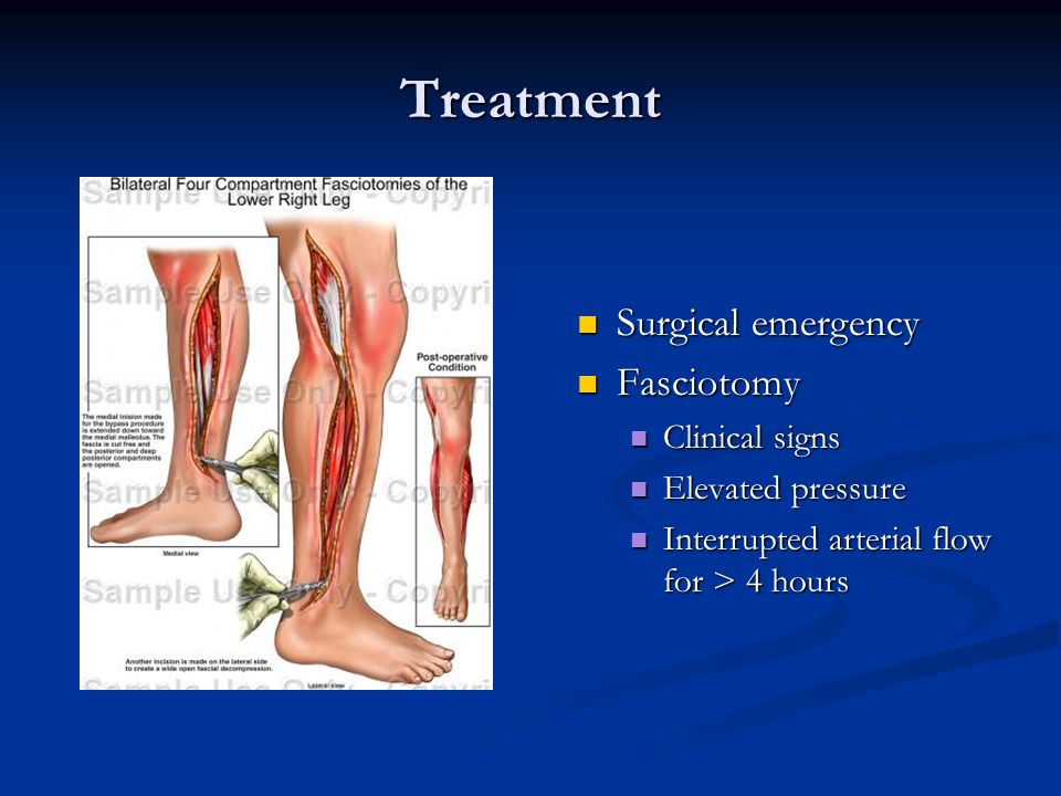 Treatment Surgical emergency Fasciotomy Clinical signs