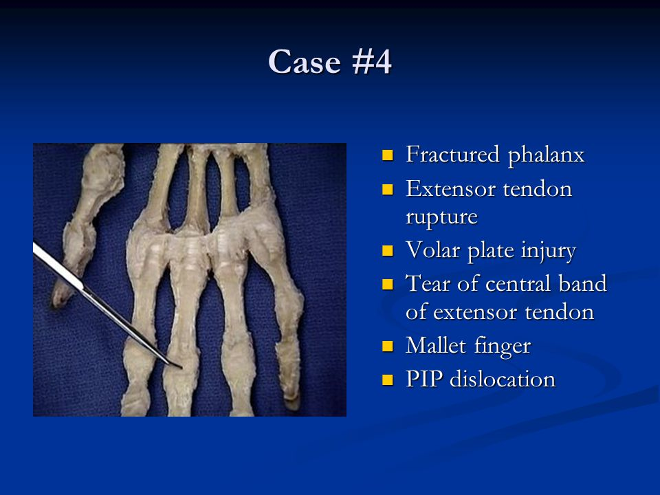Case #4 Fractured phalanx Extensor tendon rupture Volar plate injury
