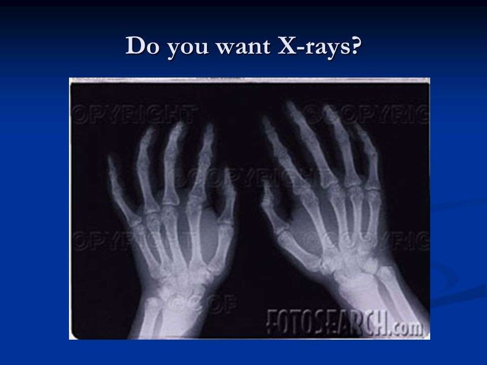 Do you want X-rays