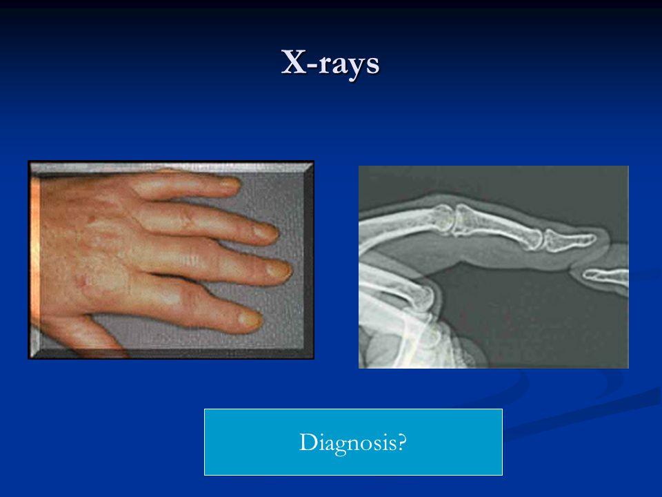 X-rays Diagnosis