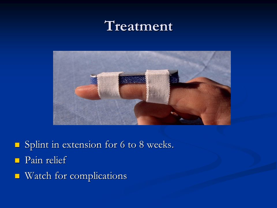 Treatment Splint in extension for 6 to 8 weeks. Pain relief
