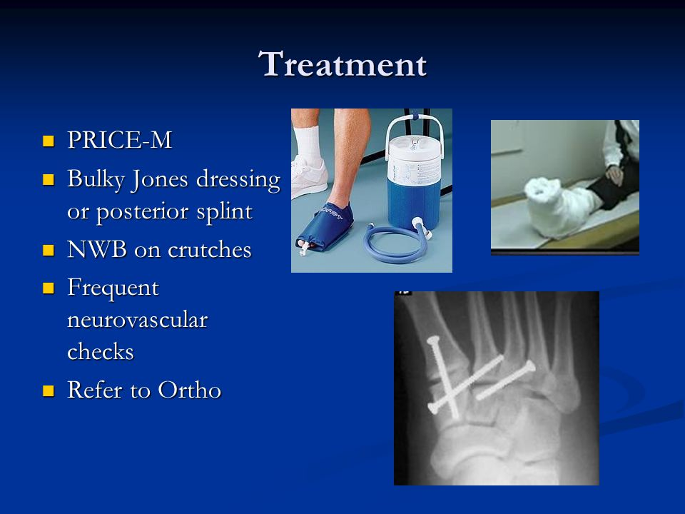 Treatment PRICE-M Bulky Jones dressing or posterior splint