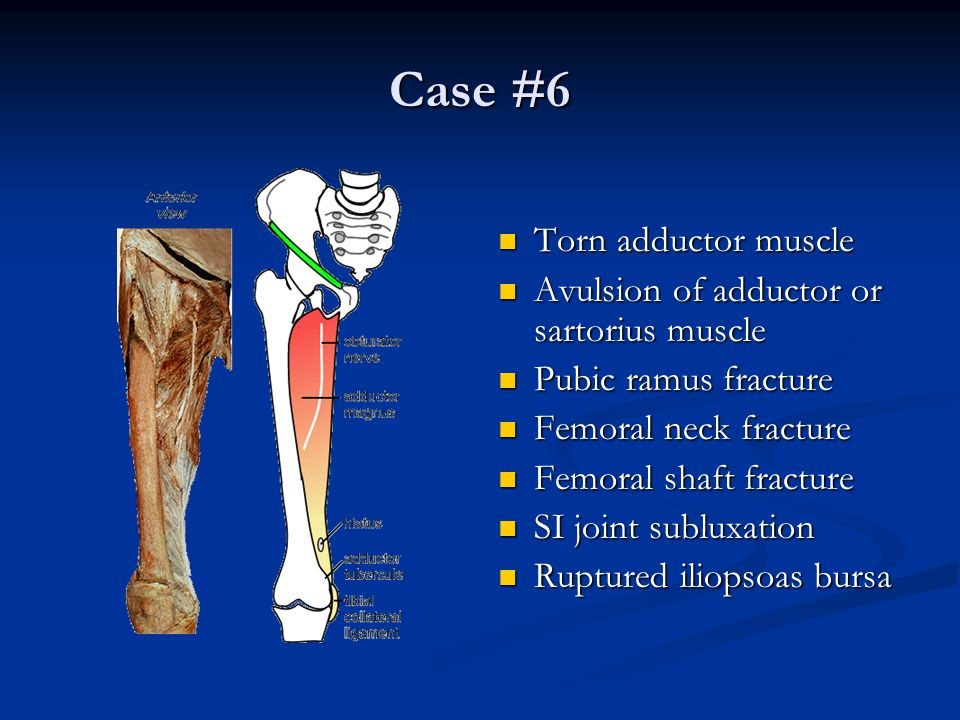 Case #6 Torn adductor muscle Avulsion of adductor or sartorius muscle