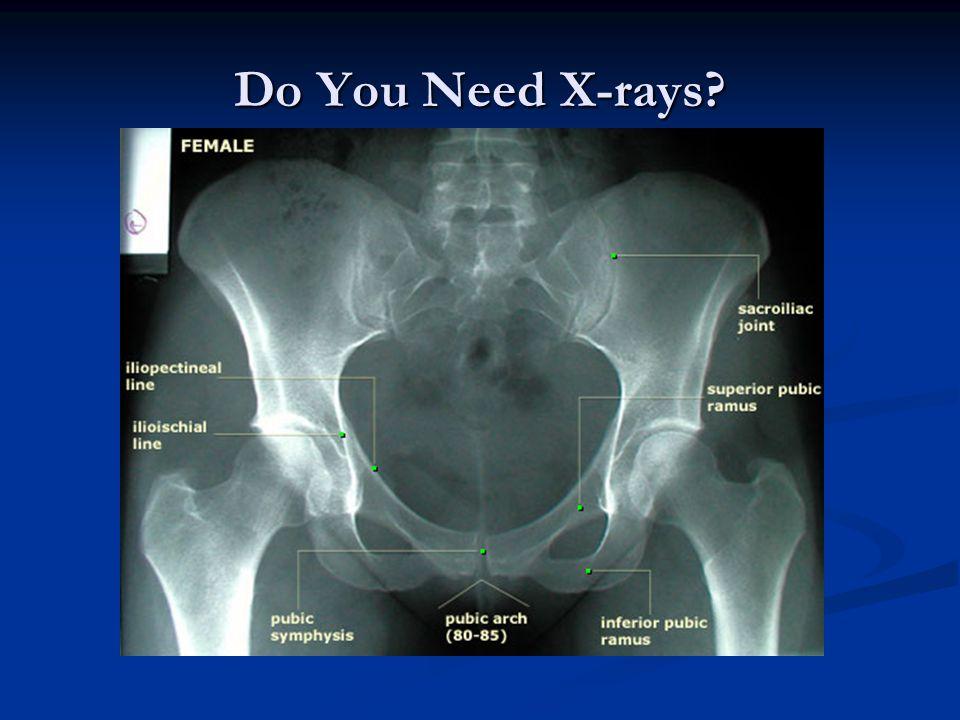 Do You Need X-rays