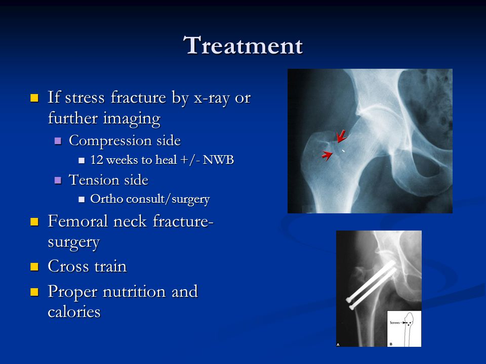 Treatment If stress fracture by x-ray or further imaging