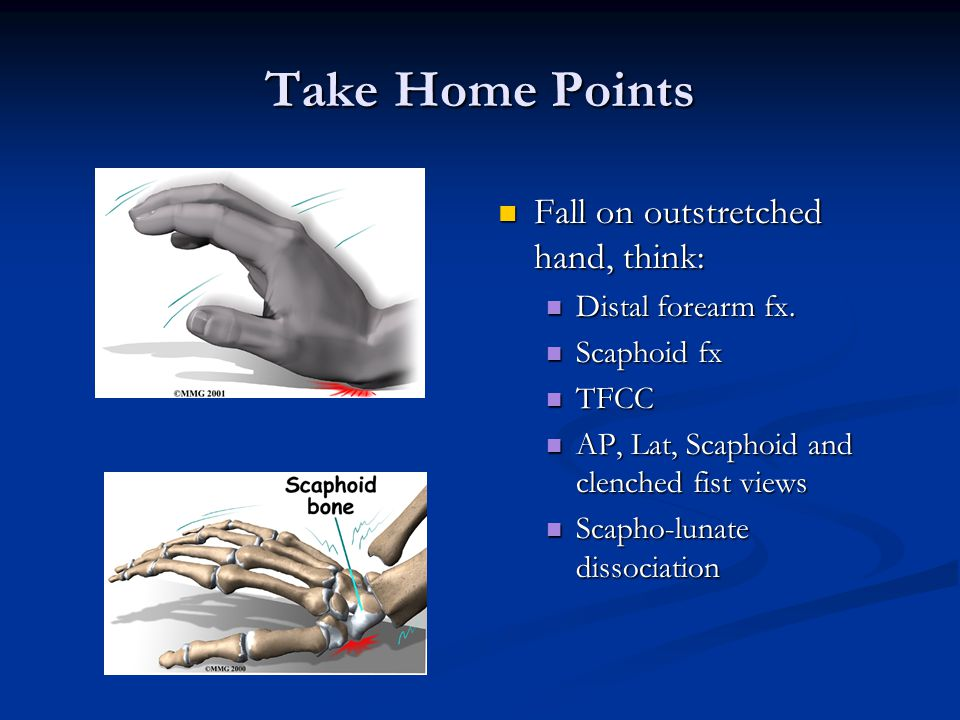 Take Home Points Fall on outstretched hand, think: Distal forearm fx.