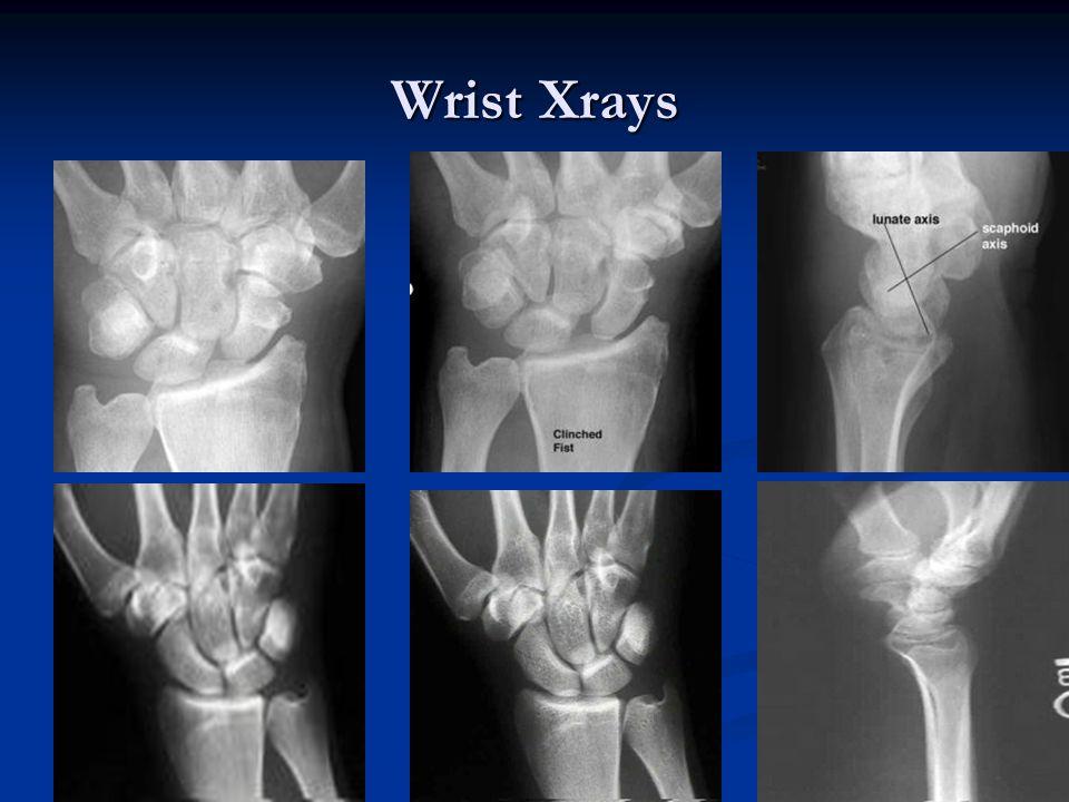 Wrist Xrays
