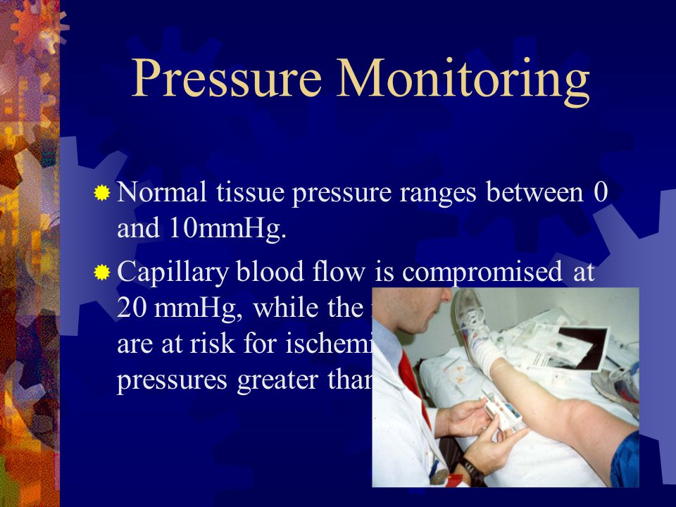 Pressure Monitoring Normal tissue pressure ranges between 0 and 10mmHg.