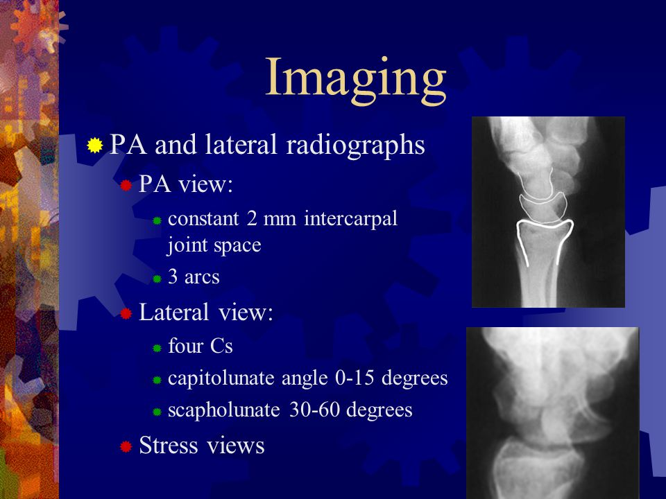 Imaging PA and lateral radiographs PA view: Lateral view: Stress views