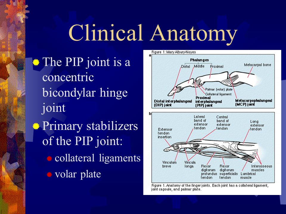 Clinical Anatomy The PIP joint is a concentric bicondylar hinge joint