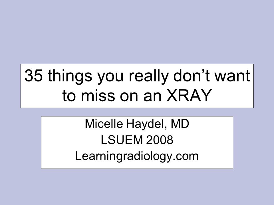 35 things you really don't want to miss on an XRAY