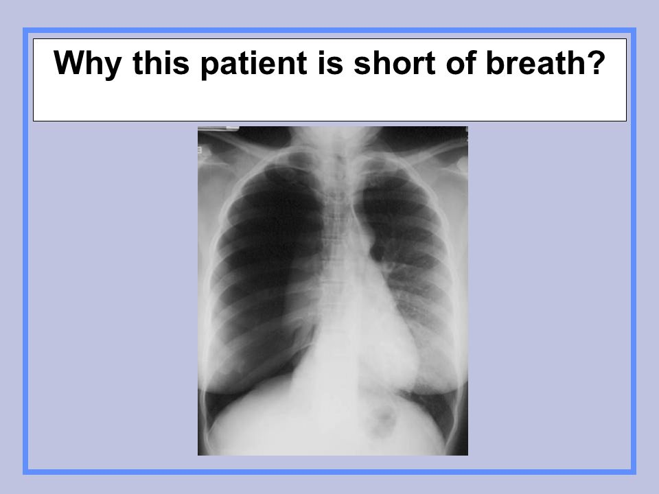 Why this patient is short of breath