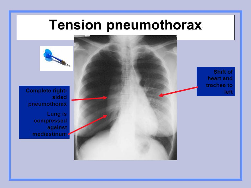 Tension pneumothorax Shift of heart and trachea to left