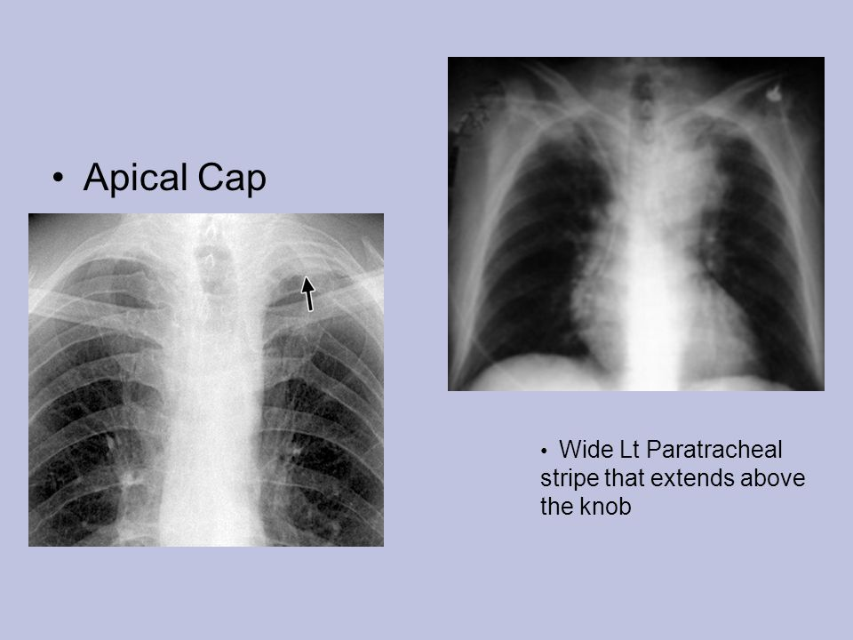Apical Cap Wide Lt Paratracheal stripe that extends above the knob