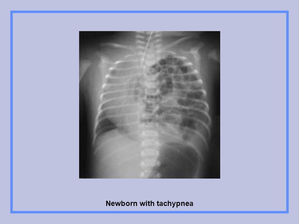 Newborn with tachypnea