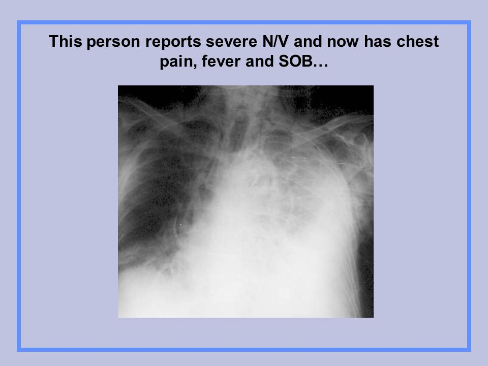 This person reports severe N/V and now has chest pain, fever and SOB…