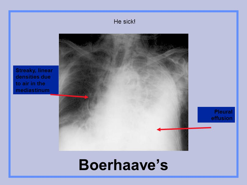 He sick! Streaky, linear densities due to air in the mediastinum Pleural effusion Boerhaave's