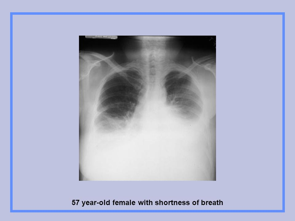 57 year-old female with shortness of breath