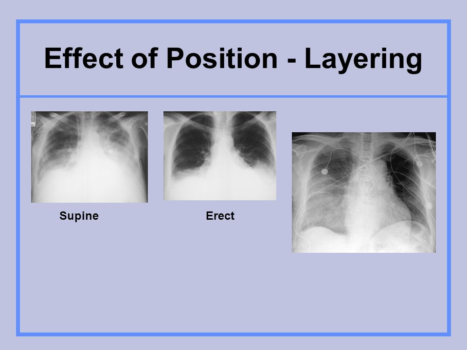 Effect of Position - Layering