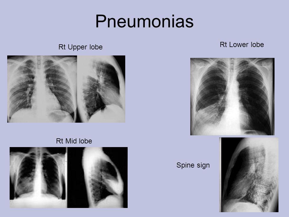 Pneumonias Rt Lower lobe Rt Upper lobe Rt Mid lobe Spine sign