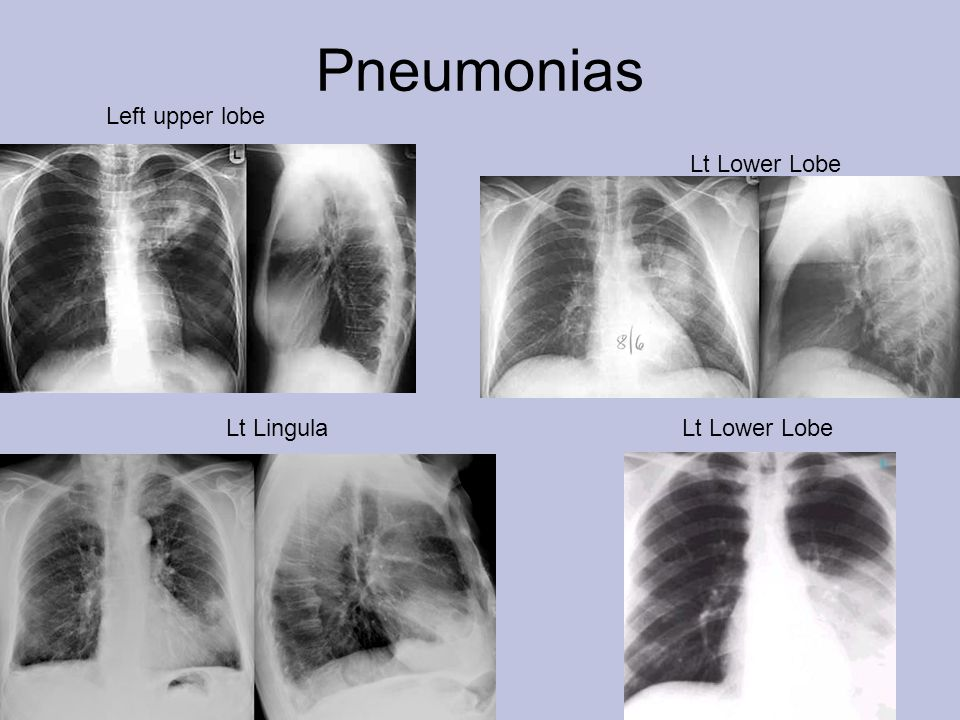 Pneumonias Left upper lobe Lt Lower Lobe Lt Lingula Lt Lower Lobe