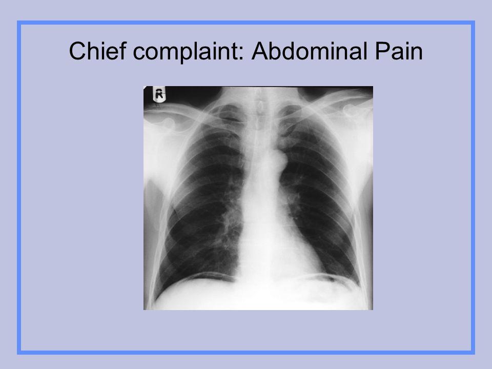 Chief complaint: Abdominal Pain