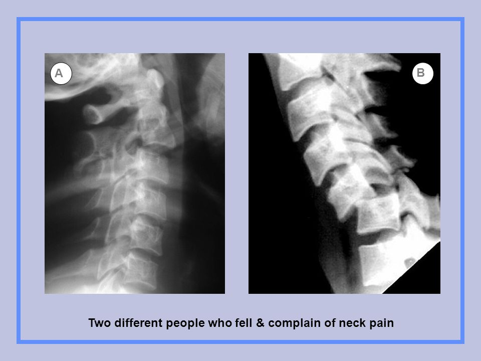 Two different people who fell & complain of neck pain