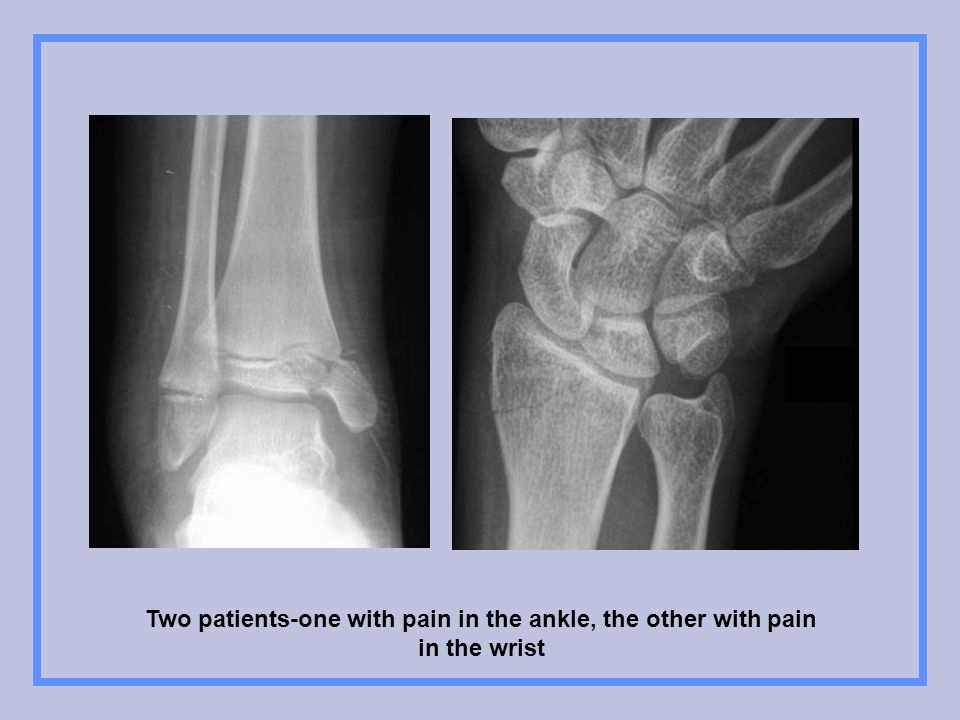Two patients-one with pain in the ankle, the other with pain in the wrist