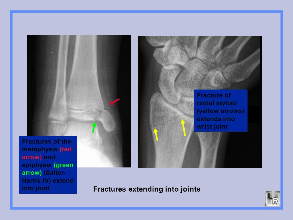 Fractures extending into joints