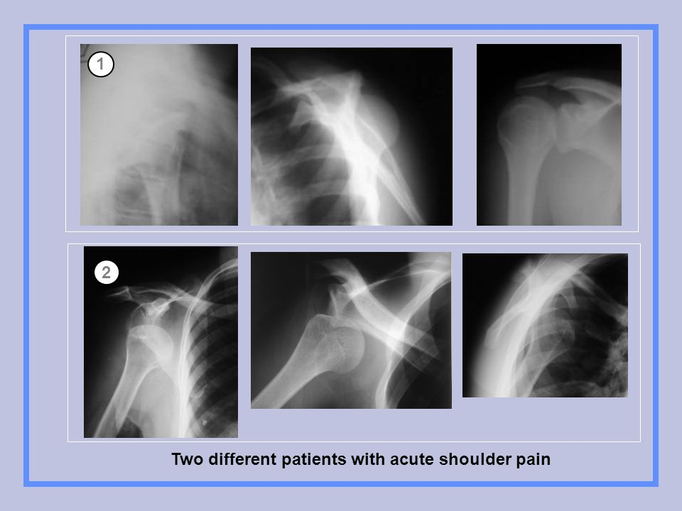 Two different patients with acute shoulder pain