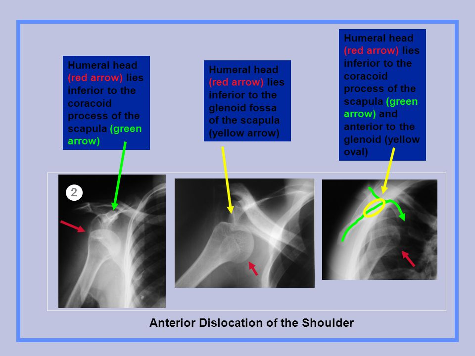 Anterior Dislocation of the Shoulder