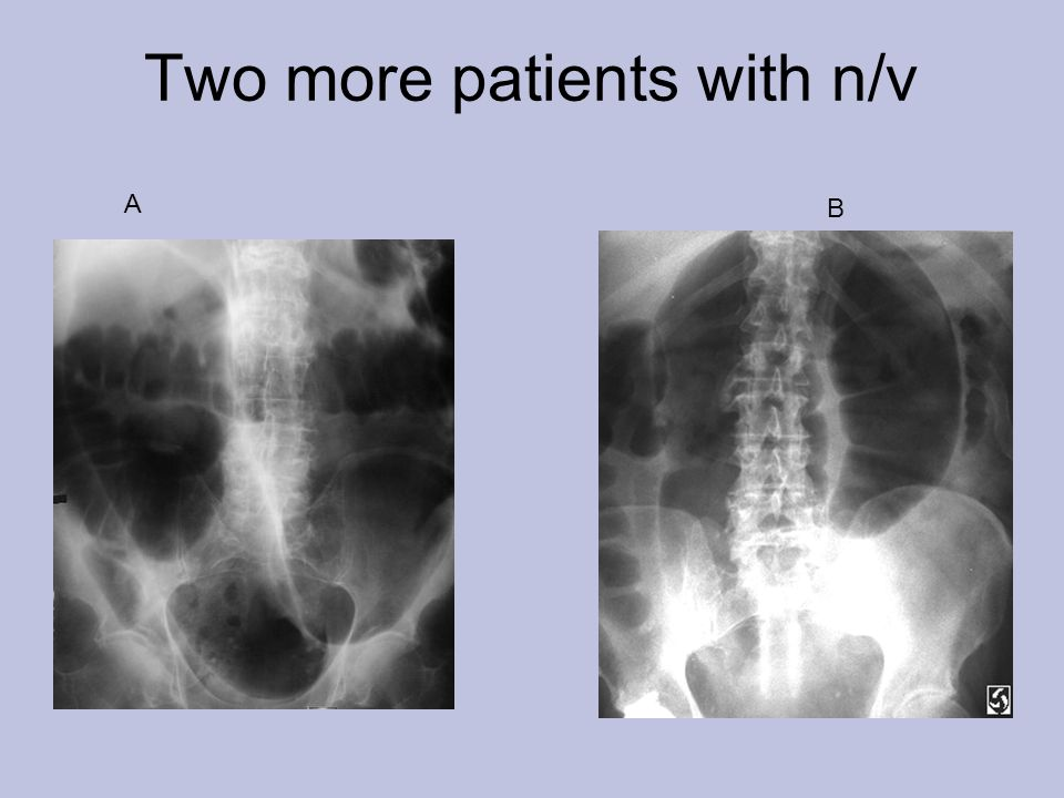Two more patients with n/v