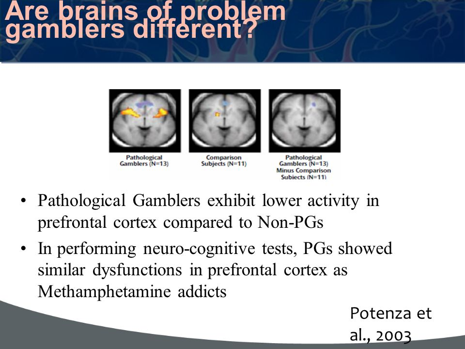 Are brains of problem gamblers different