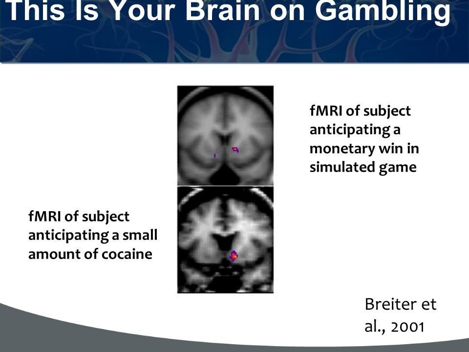 This Is Your Brain on Gambling