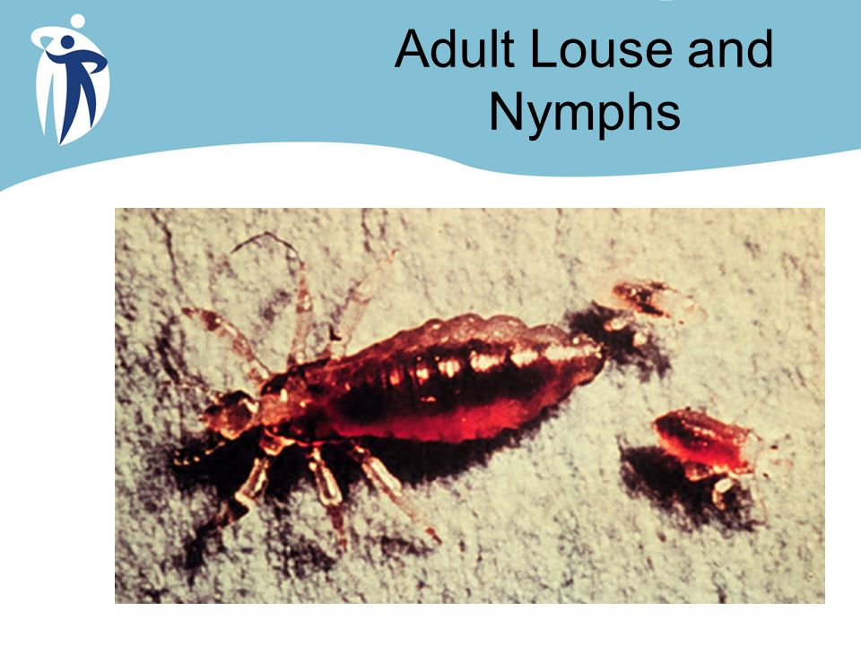 Adult Louse and Nymphs