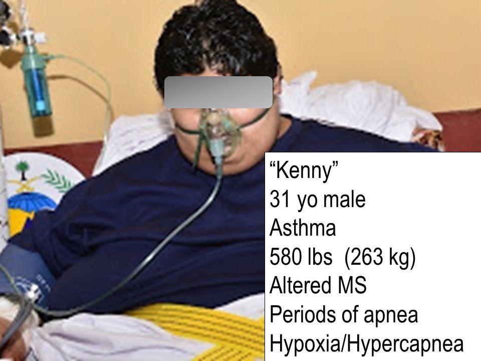 Kenny 31 yo male Asthma 580 lbs (263 kg) Altered MS Periods of apnea Hypoxia/Hypercapnea