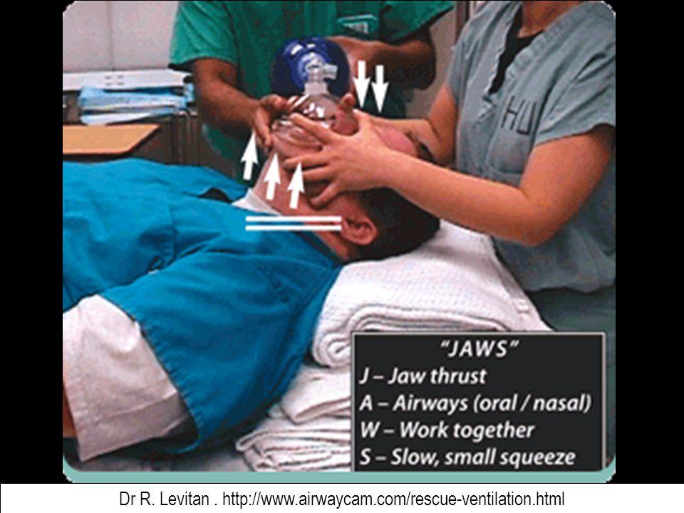 Dr R. Levitan . http://www.airwaycam.com/rescue-ventilation.html
