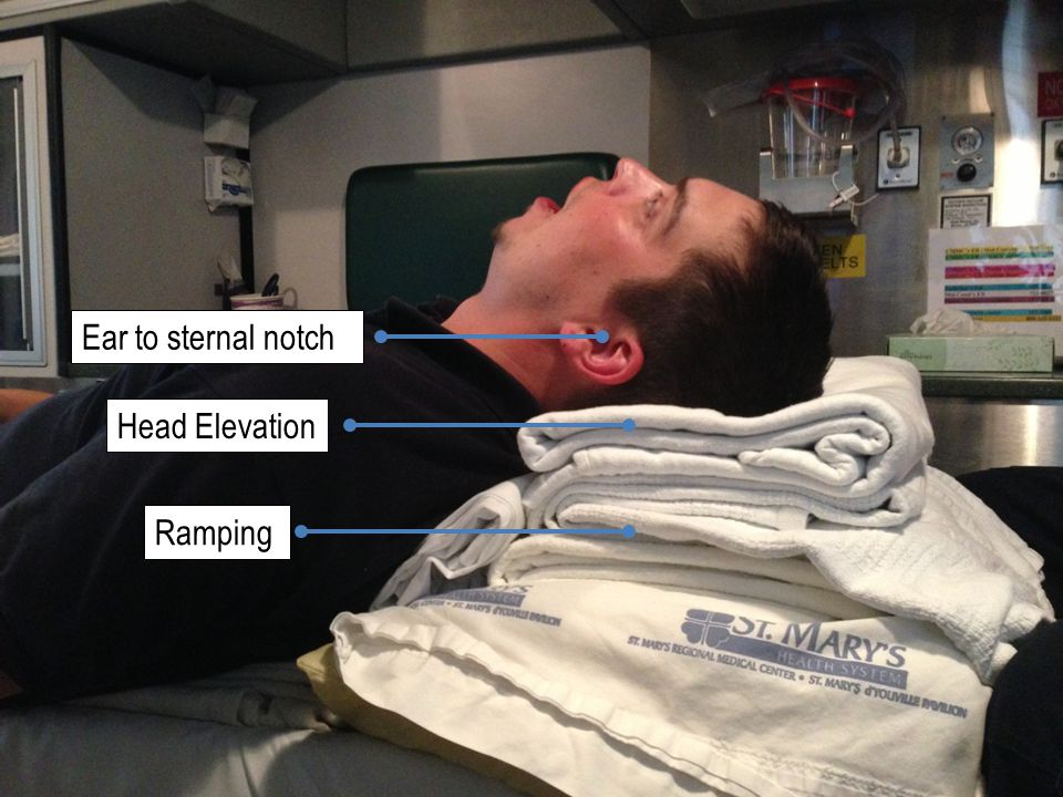 Ear to sternal notch Head Elevation Ramping