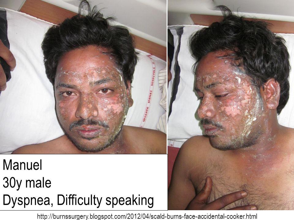 Dyspnea, Difficulty speaking